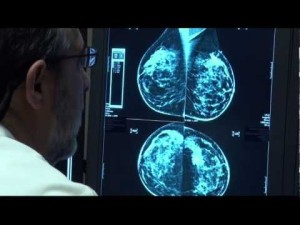 Breast cancer dense breasts 0