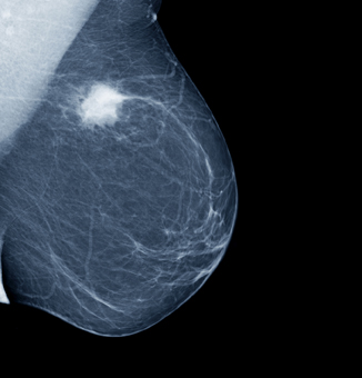 National Mammography Program - National Breast Cancer