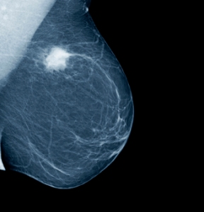 Breast cancer Mammogram_tumorweb